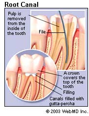 root-canal_rootcanal